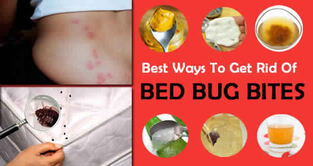 Natural Methods to Get Rid of Bed Bugs